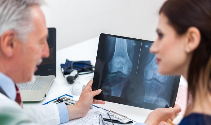 Osteoporoza jest kobietą